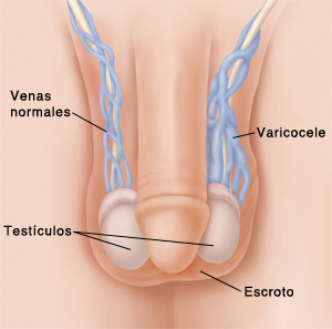 """Anterior view of male genitalia with varicocele   SOURCE: 13A11683 Also used in 4B11360/ MOD: add varicocele and other veins, color correction, shorten penis Medline Plus (2004). """"Varicocele."""" Retrieved from WWW 11/14/04 at: www.nlm.nih.gov/medlineplus/ency/imagepages/19472.htm"""