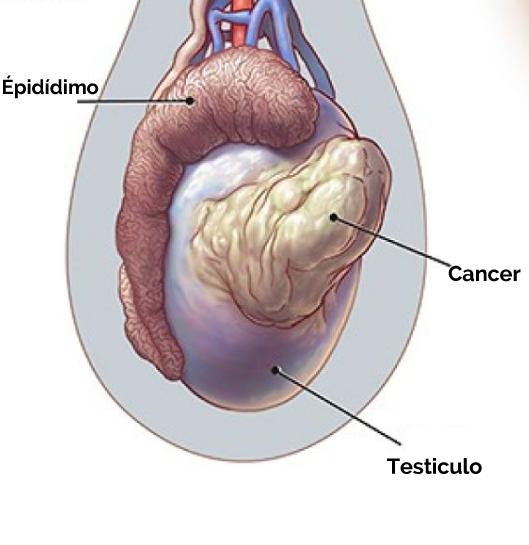testiculo